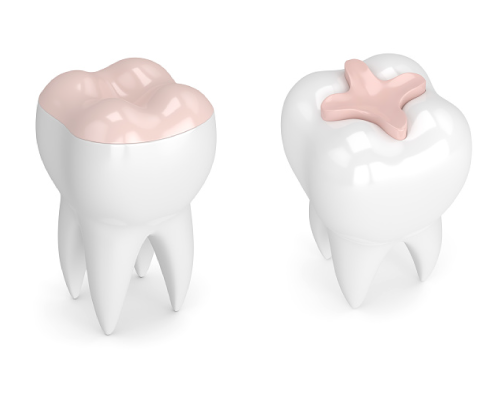 Rendering of teeth with inlay and one with onlay